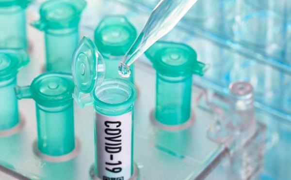 В Грузии выявлено 508 новых случаев коронавируса