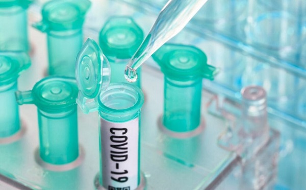 За последние 24 часа в Германии выявлено 1478 новых случаев коронавирус
