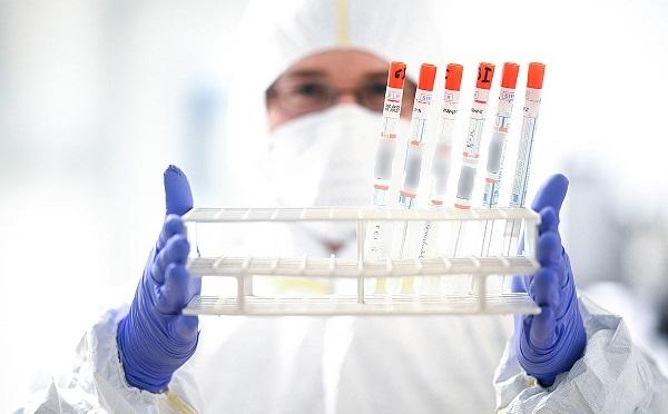 В Грузии число излечившихся от коронавируса увеличилось до 178